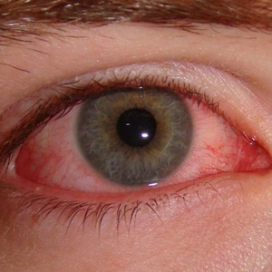Eye Infection Solution